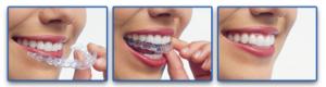 invisalign - osynlig tandställning